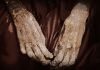 The fingers of a Philippi Mummy are drawn into crippled fists.
